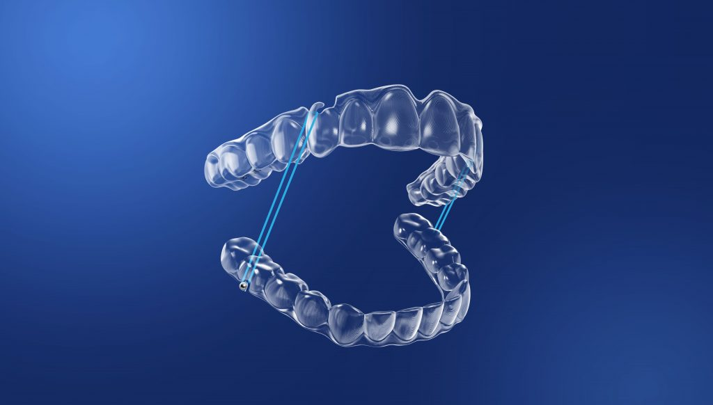 Zenyum clear aligners with elastics and attachments